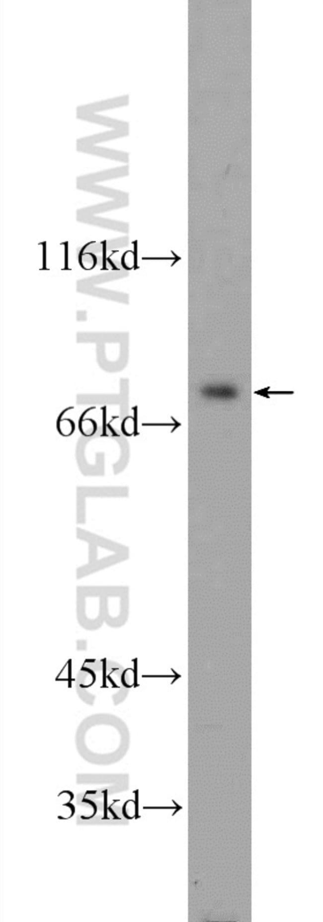 ZBTB48 Rabbit anti-Human, Polyclonal, Proteintech 20 μL; Unconjugated Produkte
