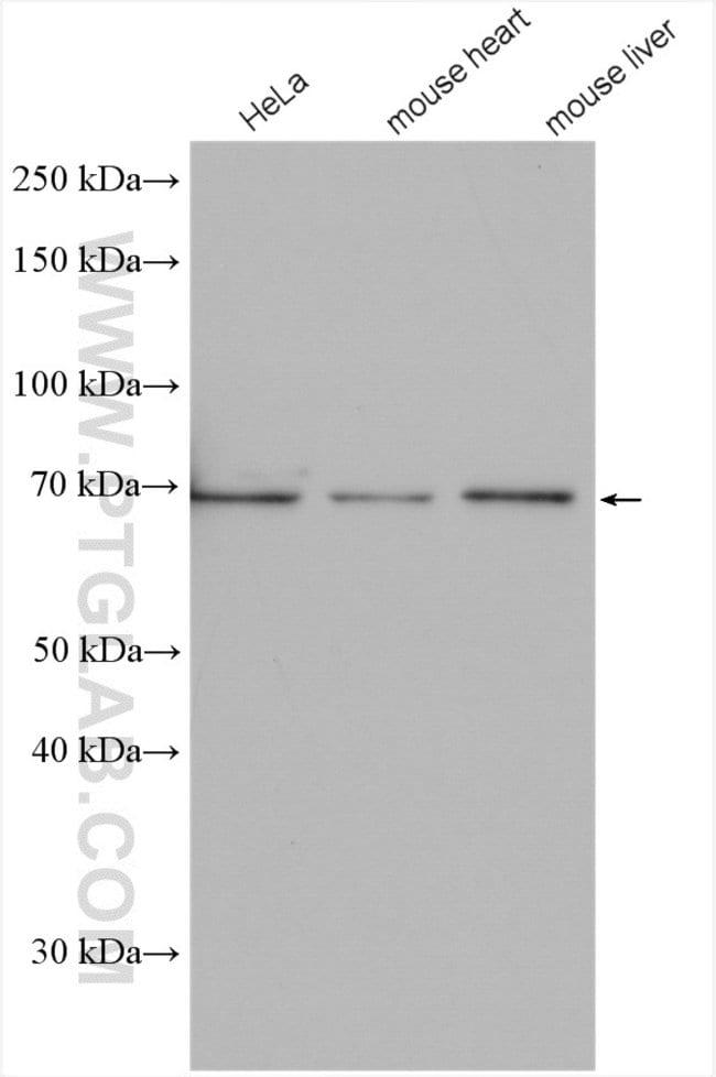 EYA4 Rabbit anti-Human, Mouse, Polyclonal, Proteintech 20 μL; Unconjugated voir les résultats