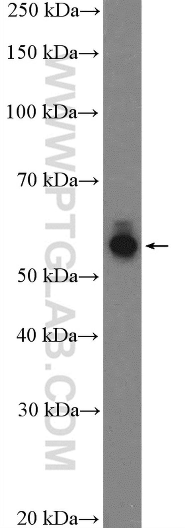 PVRL1 Rabbit anti-Human, Mouse, Polyclonal, Proteintech 20 μL; Unconjugated voir les résultats