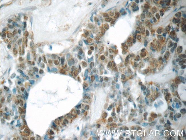 YEATS2 Rabbit anti-Human, Polyclonal, Proteintech 150 μL; Unconjugated Ver productos