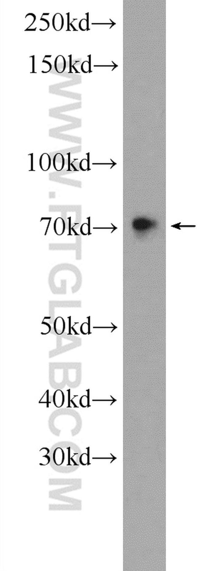 SAMD11 Rabbit anti-Human, Polyclonal, Proteintech 20 μL; Unconjugated voir les résultats