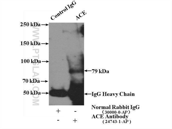 ACE Rabbit anti-Human, Mouse, Polyclonal, Proteintech 150 μL; Unconjugated Ver productos