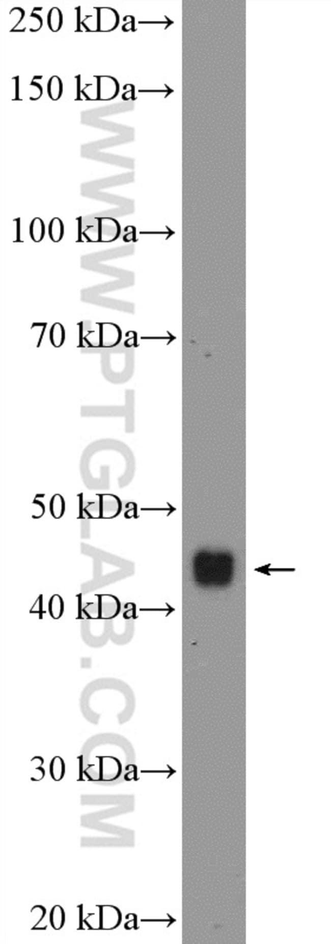 PTGER3 Rabbit anti-Human, Mouse, Polyclonal, Proteintech 150 μL; Unconjugated Ver productos