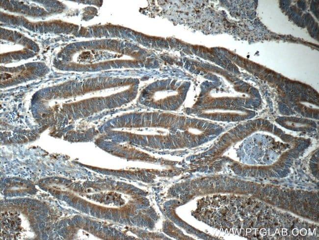 KLHL31 Rabbit anti-Human, Mouse, Polyclonal, Proteintech 20 μL; Unconjugated voir les résultats