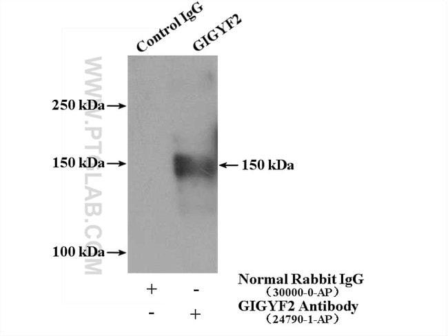 GIGYF2 Rabbit anti-Human, Polyclonal, Proteintech 20 μL; Unconjugated Produkte