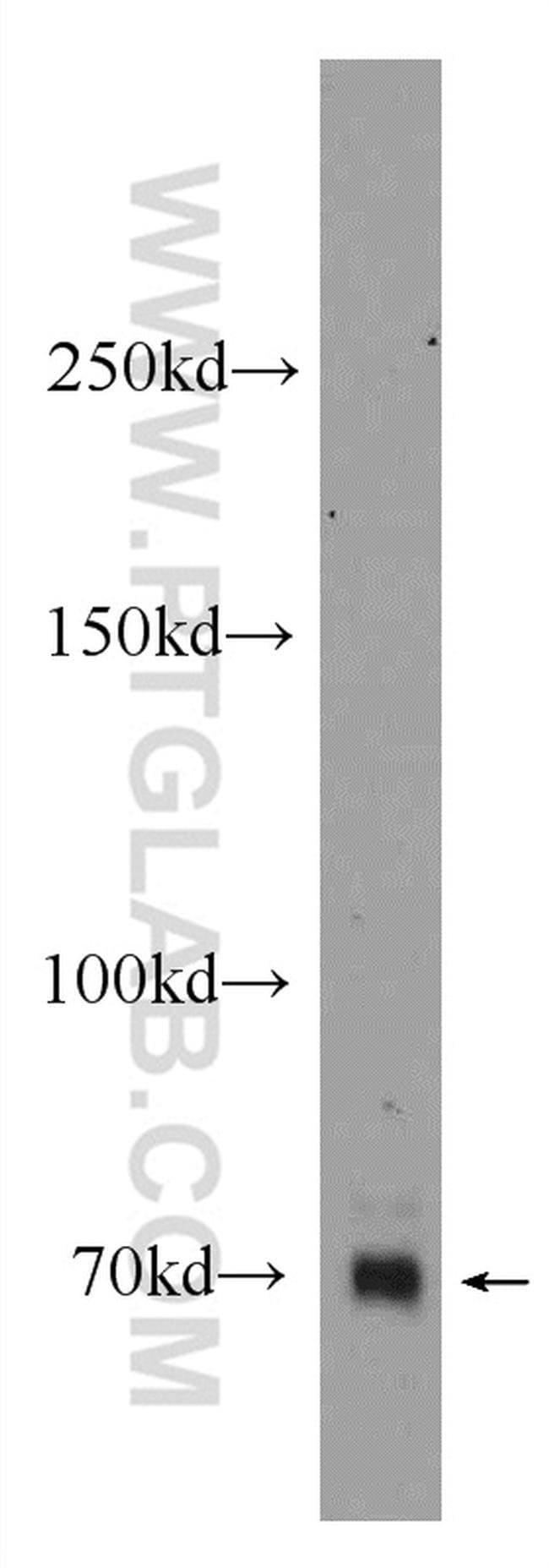 ZNF658 Rabbit anti-Human, Rat, Polyclonal, Proteintech 150 μL; Unconjugated Ver productos