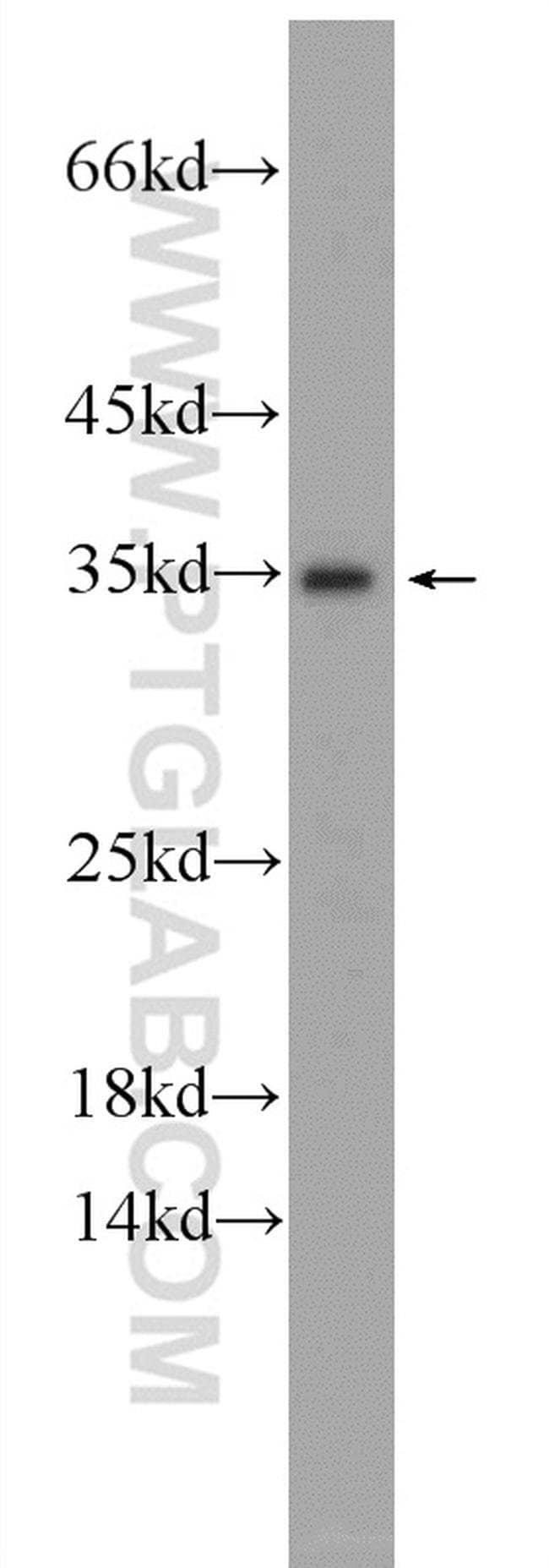 IDNK Rabbit anti-Human, Mouse, Polyclonal, Proteintech 20 μL; Unconjugated voir les résultats