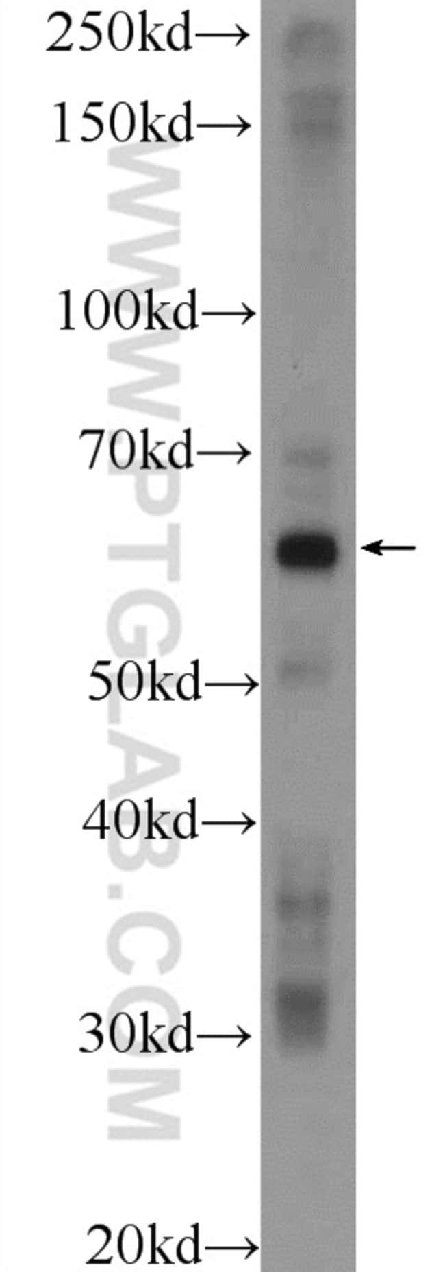 POTEH Rabbit anti-Human, Polyclonal, Proteintech 20 μL; Unconjugated Produkte