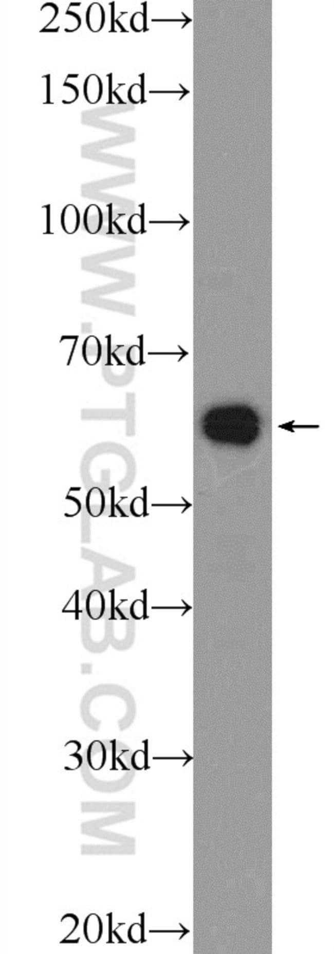 PDF Rabbit anti-Human, Polyclonal, Proteintech 150 μL; Unconjugated Ver productos