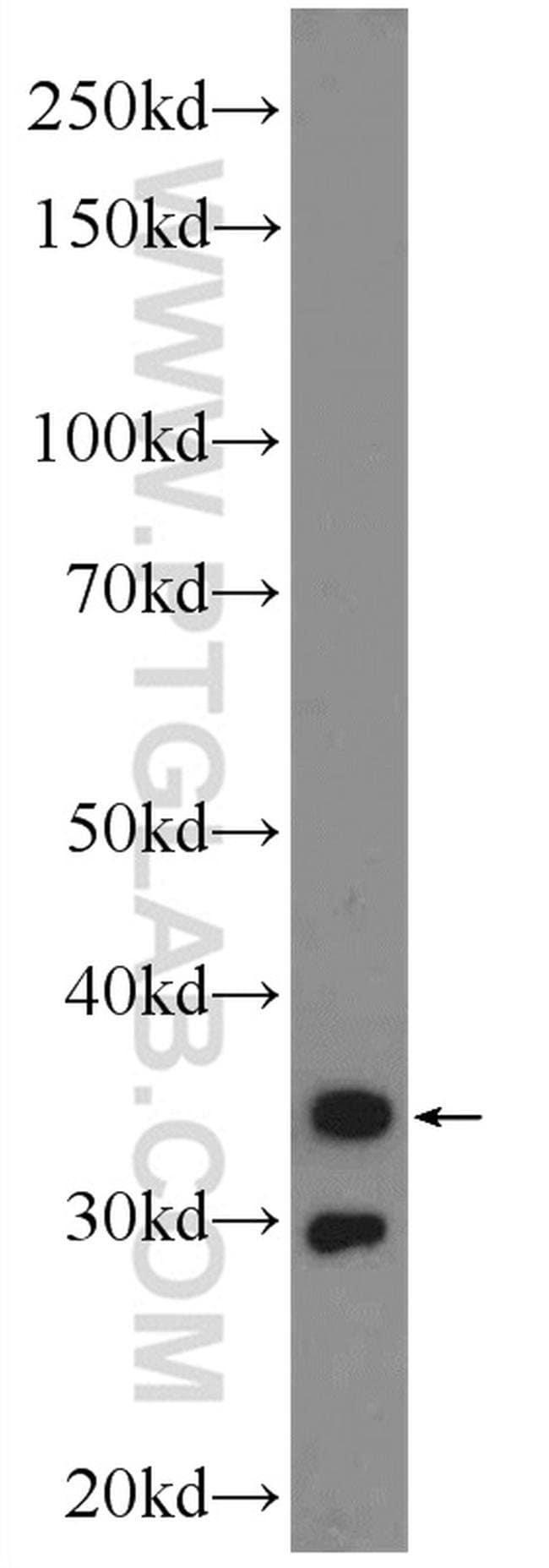 Calponin Rabbit anti-Human, Mouse, Polyclonal, Proteintech 150 μL; Unconjugated Ver productos