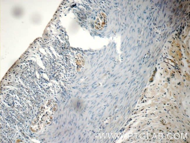 NMU Rabbit anti-Human, Polyclonal, Proteintech 20 μL; Unconjugated Produkte