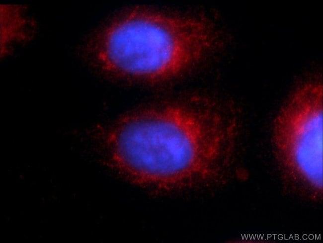 WDR81 Rabbit anti-Human, Mouse, Polyclonal, Proteintech 20 μL; Unconjugated Produkte