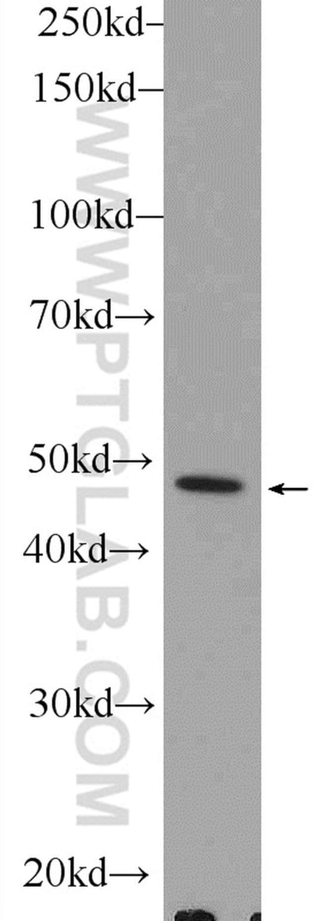 PLEKHO1 Rabbit anti-Human, Mouse, Polyclonal, Proteintech 150 μL; Unconjugated Ver productos