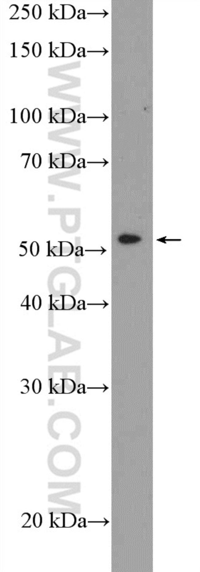 PTGER4 Rabbit anti-Human, Mouse, Rat, Polyclonal, Proteintech 150 μL; Unconjugated Ver productos