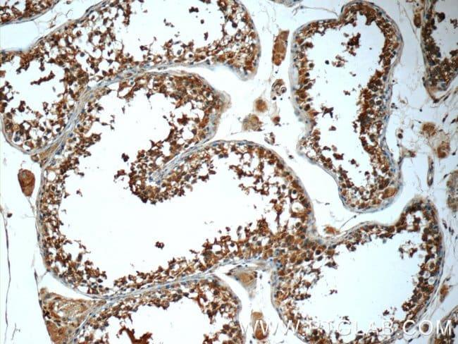 Prokineticin 2 Rabbit anti-Human, Polyclonal, Proteintech 150 μL; Unconjugated Ver productos