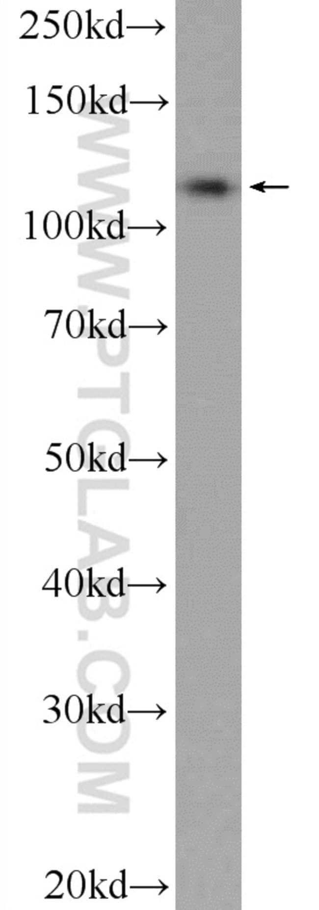 C10orf28 Rabbit anti-Human, Polyclonal, Proteintech 20 μL; Unconjugated voir les résultats