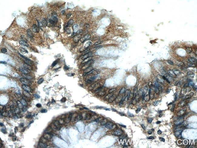 C10orf68 Rabbit anti-Human, Non-human primate, Polyclonal, Proteintech 20 μL; Unconjugated Produkte