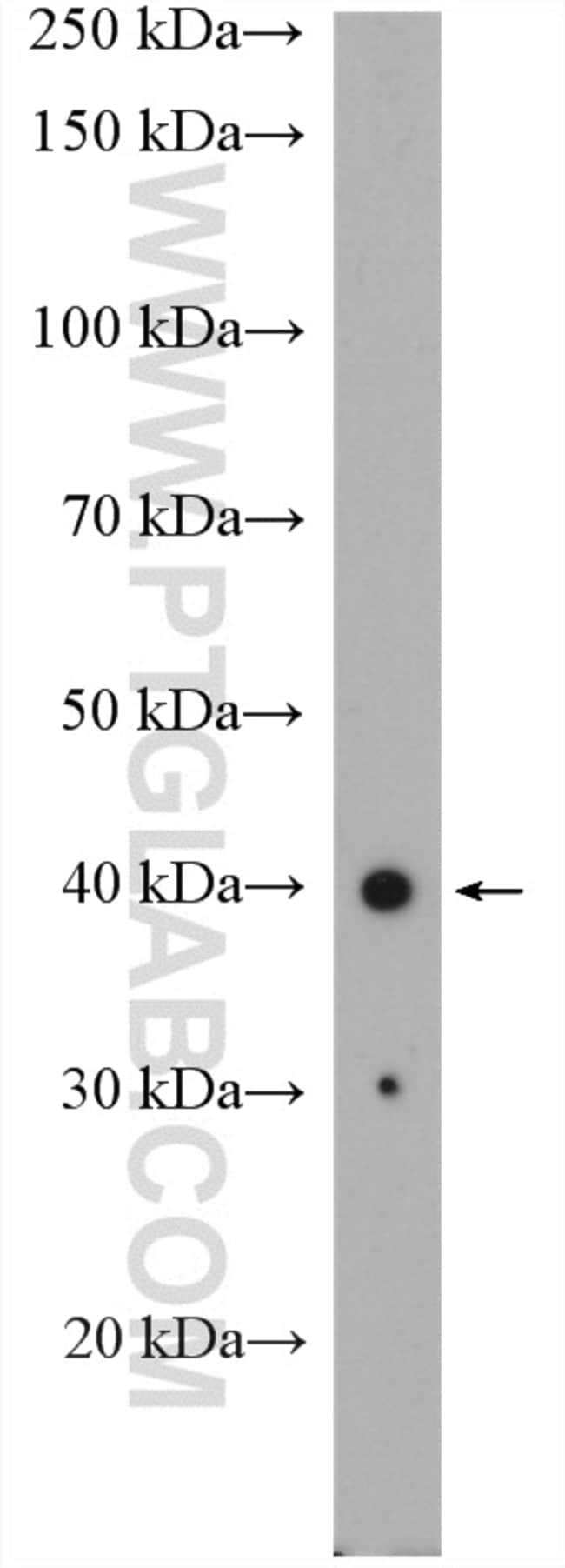 SPATA1 Rabbit anti-Human, Polyclonal, Proteintech 150 μL; Unconjugated Ver productos