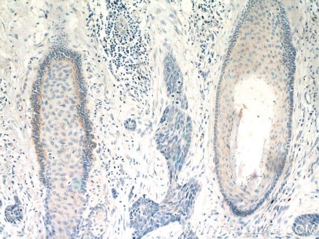 FGFBP1 Rabbit anti-Human, Polyclonal, Proteintech 20 μL; Unconjugated voir les résultats