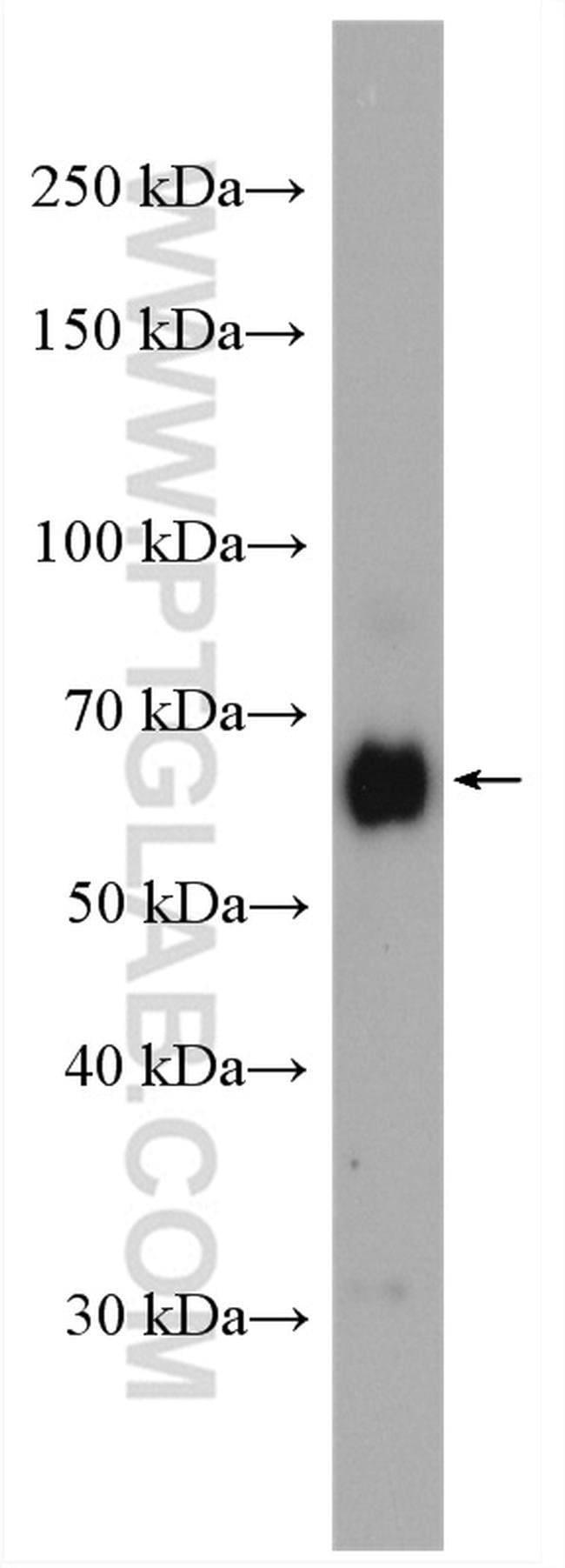 ZC3H12A Rabbit anti-Human, Mouse, Polyclonal, Proteintech 150 μL; Unconjugated Ver productos