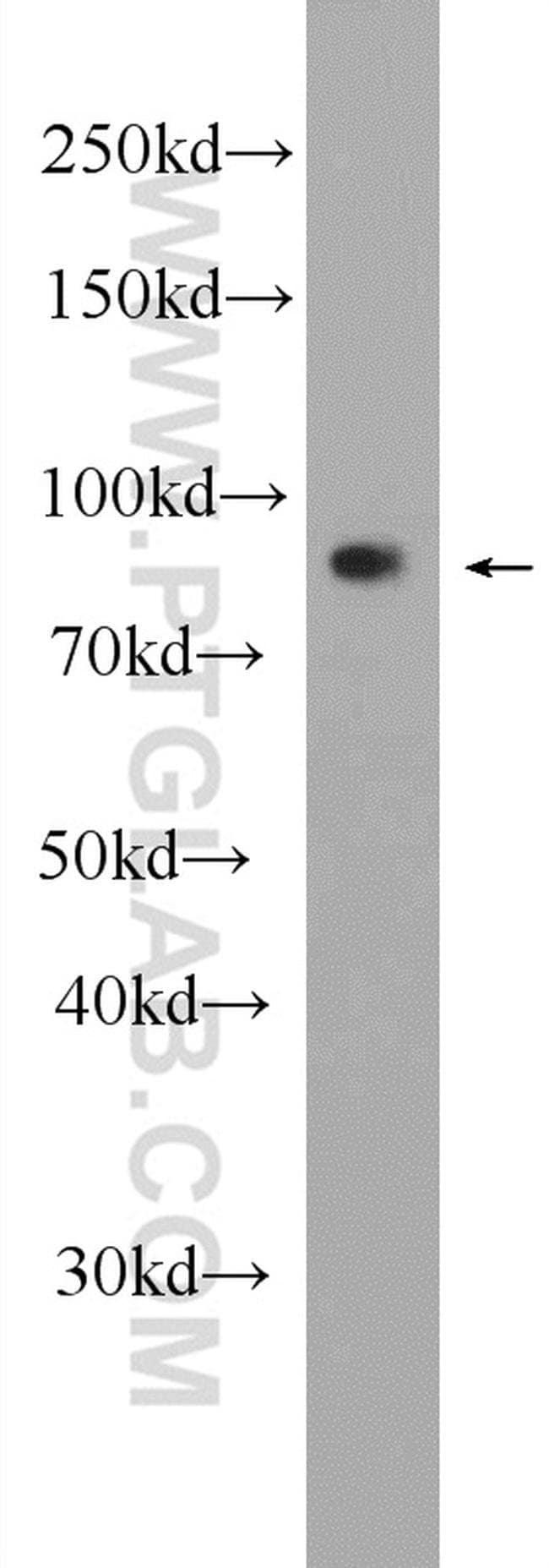 LRCH1 Rabbit anti-Human, Polyclonal, Proteintech 20 μL; Unconjugated voir les résultats