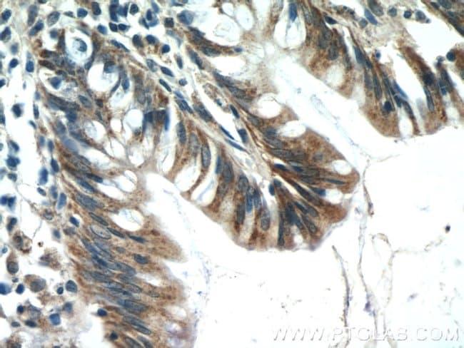 C4orf29 Rabbit anti-Human, Mouse, Polyclonal, Proteintech 20 μL; Unconjugated Produkte
