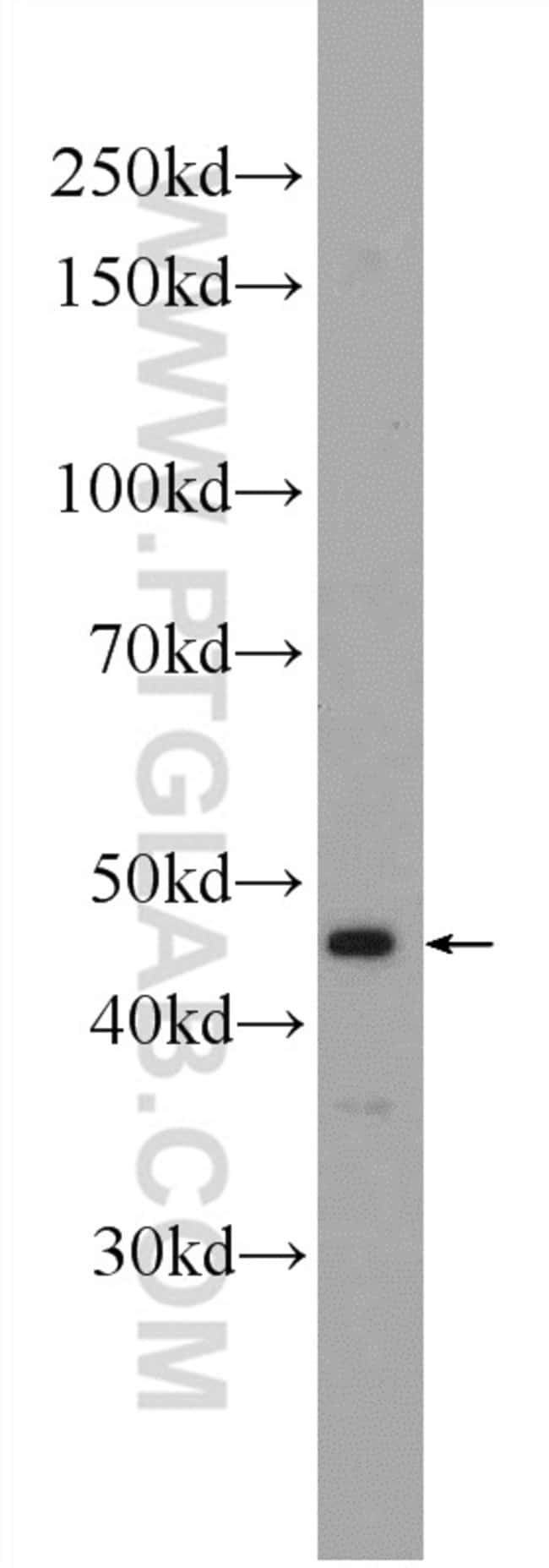HOXA2 Rabbit anti-Human, Rat, Polyclonal, Proteintech 20 μL; Unconjugated voir les résultats