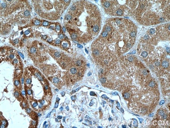 RNF135 Rabbit anti-Human, Mouse, Polyclonal, Proteintech 150 μL; Unconjugated Ver productos