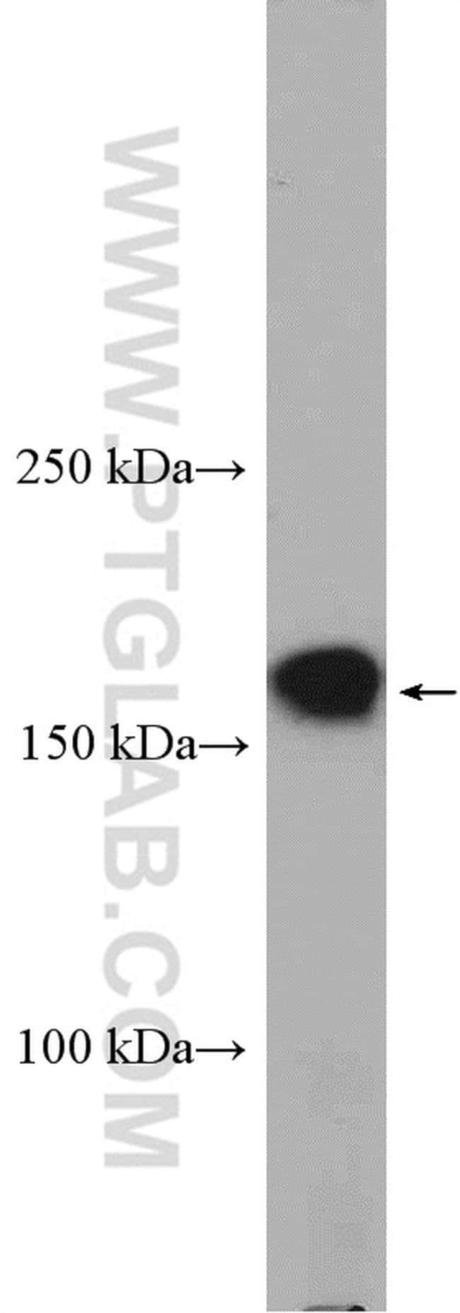PCDH9 Rabbit anti-Human, Mouse, Rat, Polyclonal, Proteintech 20 μL; Unconjugated voir les résultats