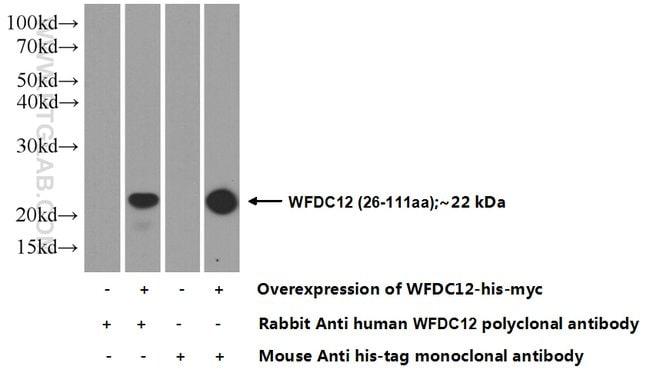 WFDC12 Rabbit anti-Human, Polyclonal, Proteintech 150 μL; Unconjugated Ver productos