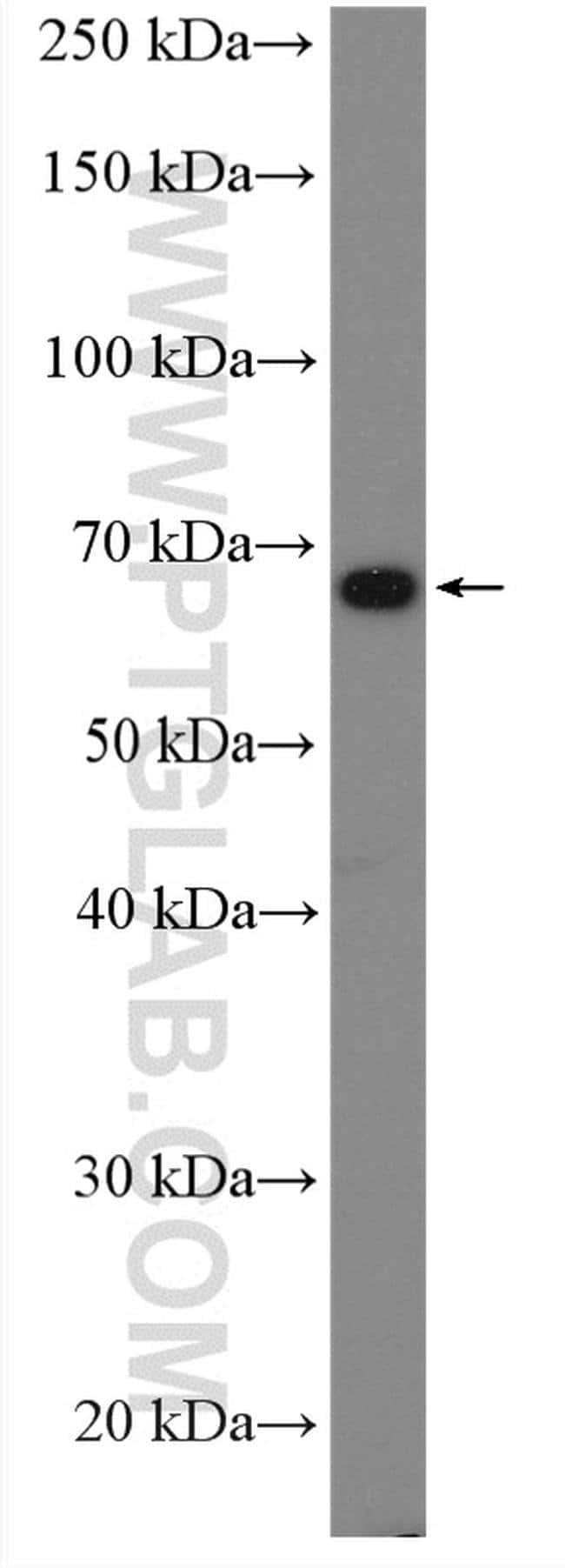 BTNL2 Rabbit anti-Human, Mouse, Polyclonal, Proteintech 150 μL; Unconjugated Ver productos