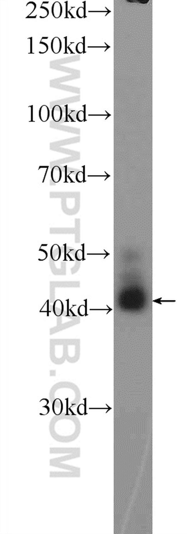 AWAT2 Rabbit anti-Human, Mouse, Rat, Polyclonal, Proteintech 150 μL; Unconjugated Ver productos