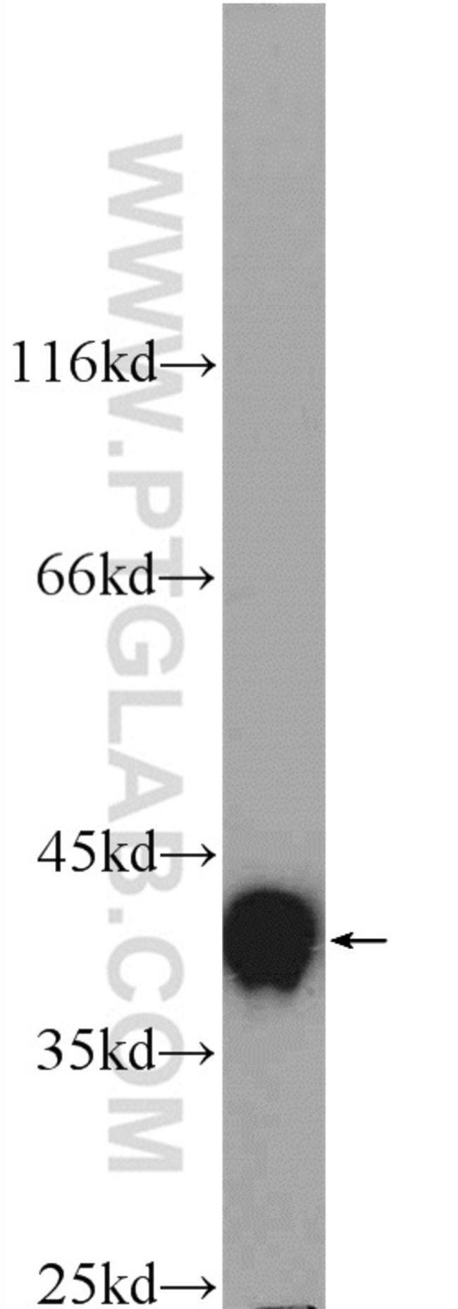HNRNPA3 Rabbit anti-Human, Mouse, Polyclonal, Proteintech 20 μL; Unconjugated voir les résultats