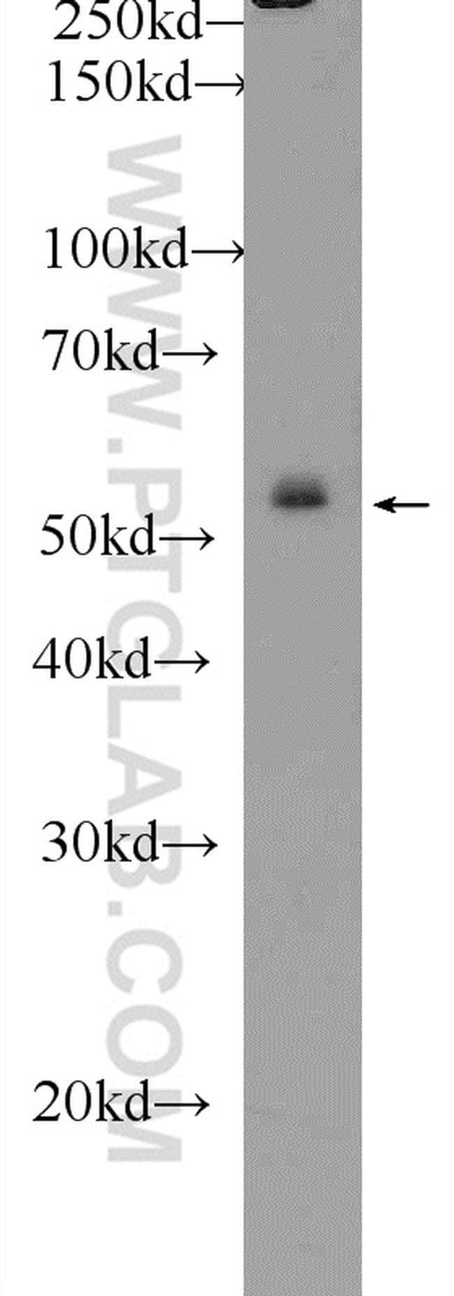 ZNF253 Rabbit anti-Human, Polyclonal, Proteintech 150 μL; Unconjugated Ver productos