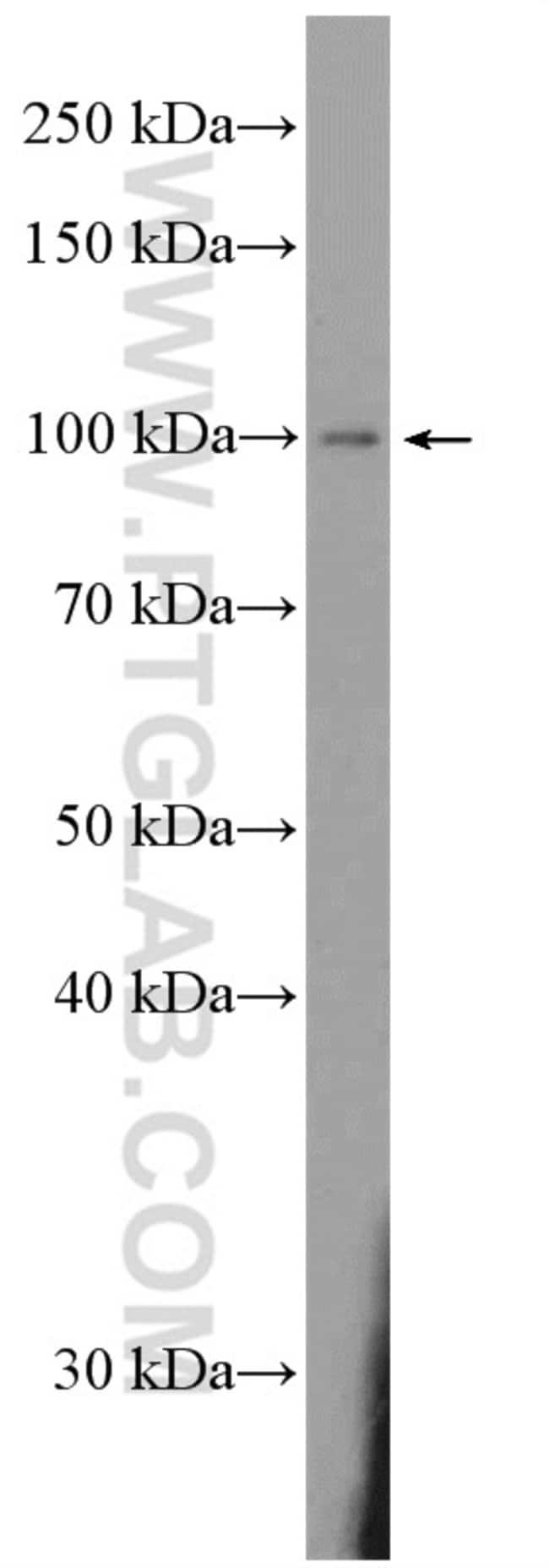 DAAM2 Rabbit anti-Human, Mouse, Rat, Polyclonal, Proteintech 20 μL; Unconjugated Produkte