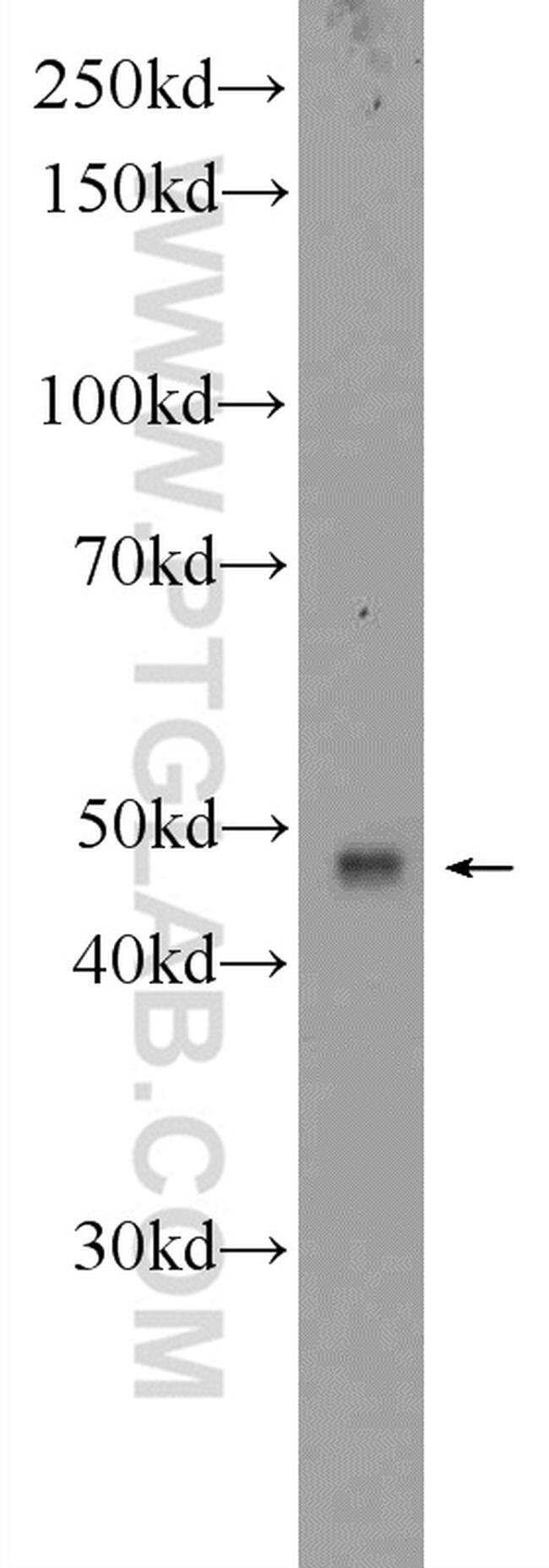 BTN3A1 Rabbit anti-Human, Polyclonal, Proteintech 20 μL; Unconjugated Produkte