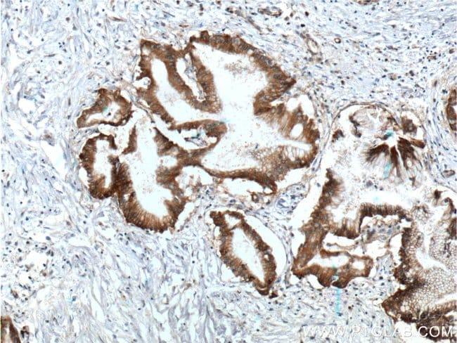 Integrin beta-4 Rabbit anti-Human, Mouse, Rat, Polyclonal, Proteintech 20 μL; Unconjugated Produkte
