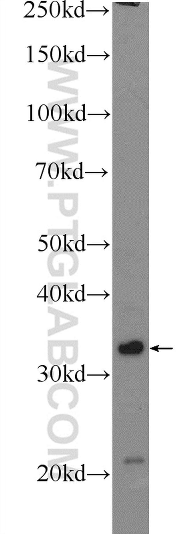 Claudin 23 Rabbit anti-Human, Polyclonal, Proteintech 20 μL; Unconjugated voir les résultats