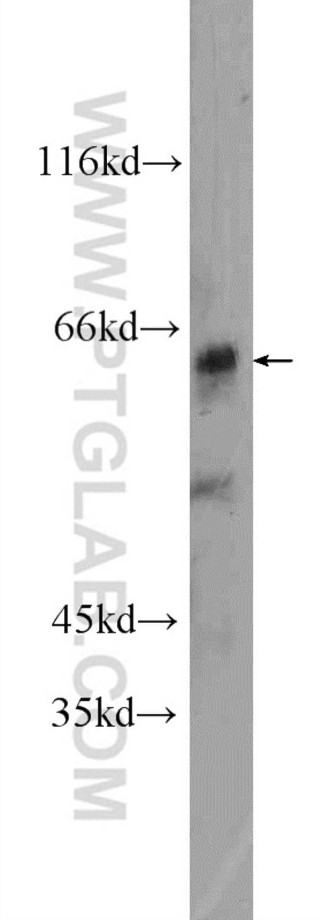 ZNF571 Rabbit anti-Human, Polyclonal, Proteintech 150 μL; Unconjugated Ver productos