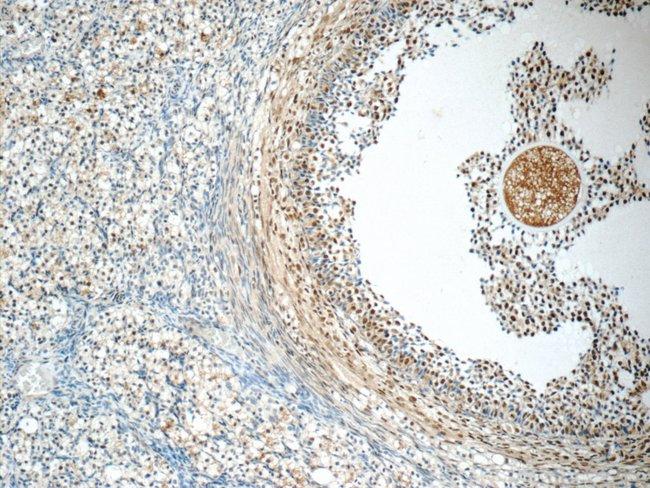 SENP1 Rabbit anti-Human, Polyclonal, Proteintech 150 μL; Unconjugated Ver productos
