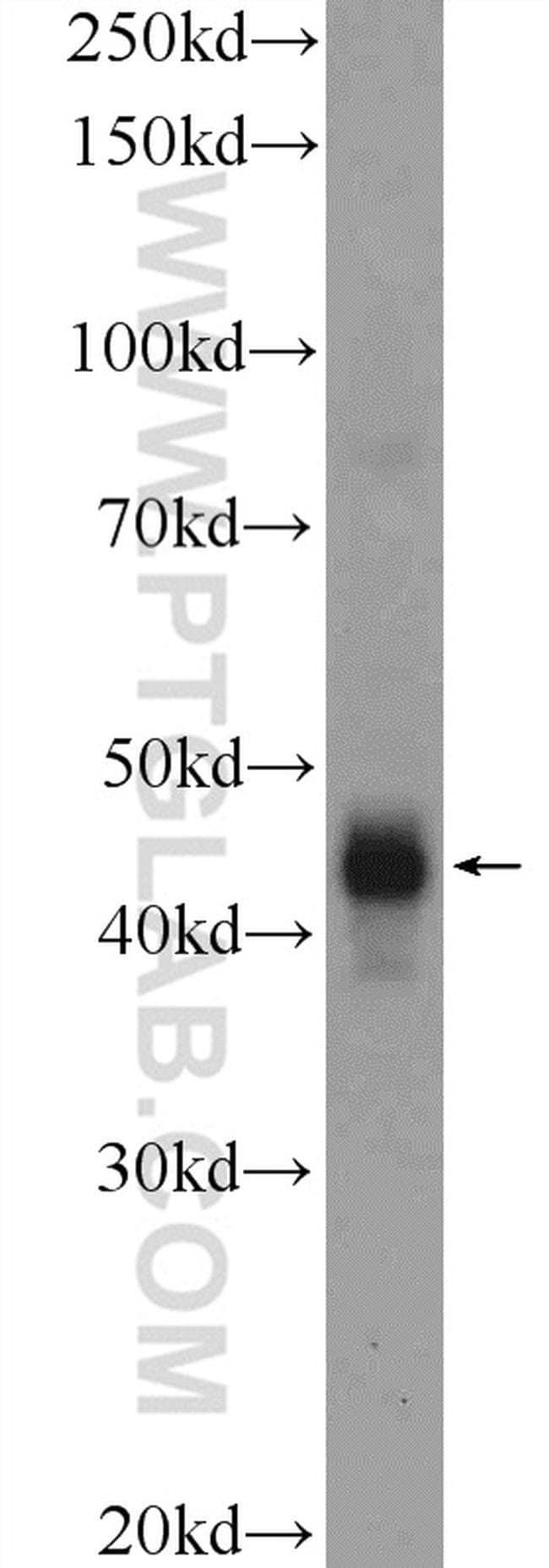 CD209 Rabbit anti-Human, Polyclonal, Proteintech 20 μL; Unconjugated voir les résultats