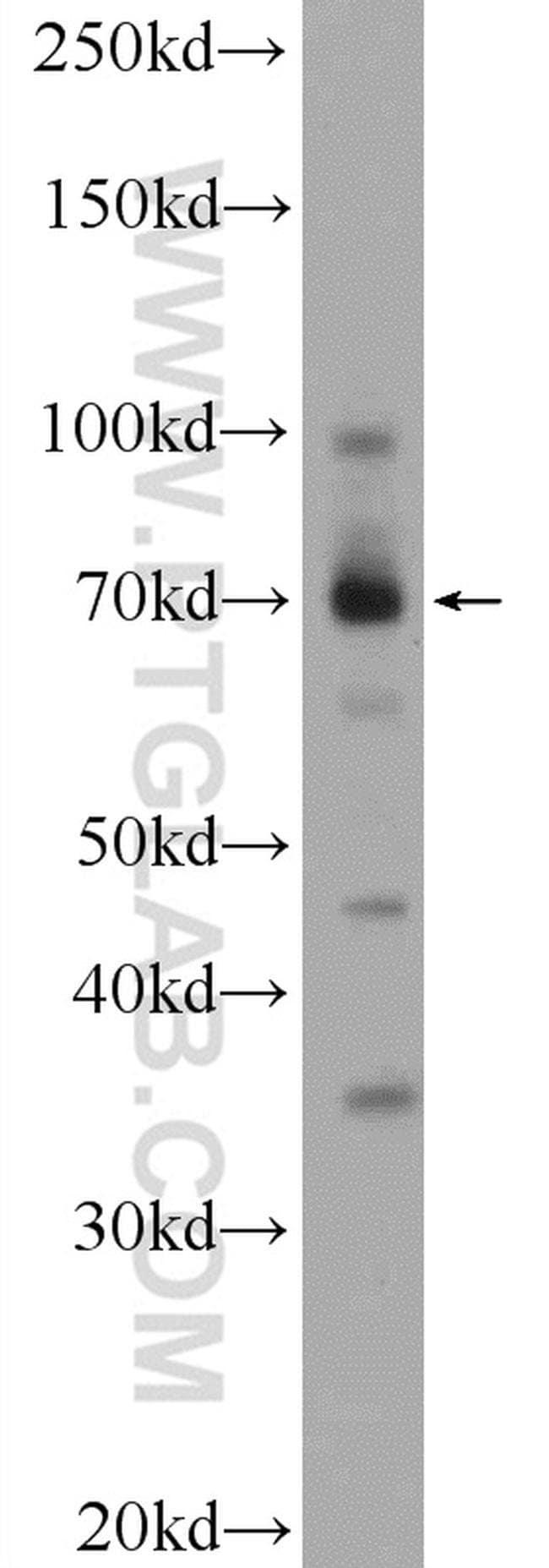 ZBTB44 Rabbit anti-Human, Polyclonal, Proteintech 20 μL; Unconjugated voir les résultats