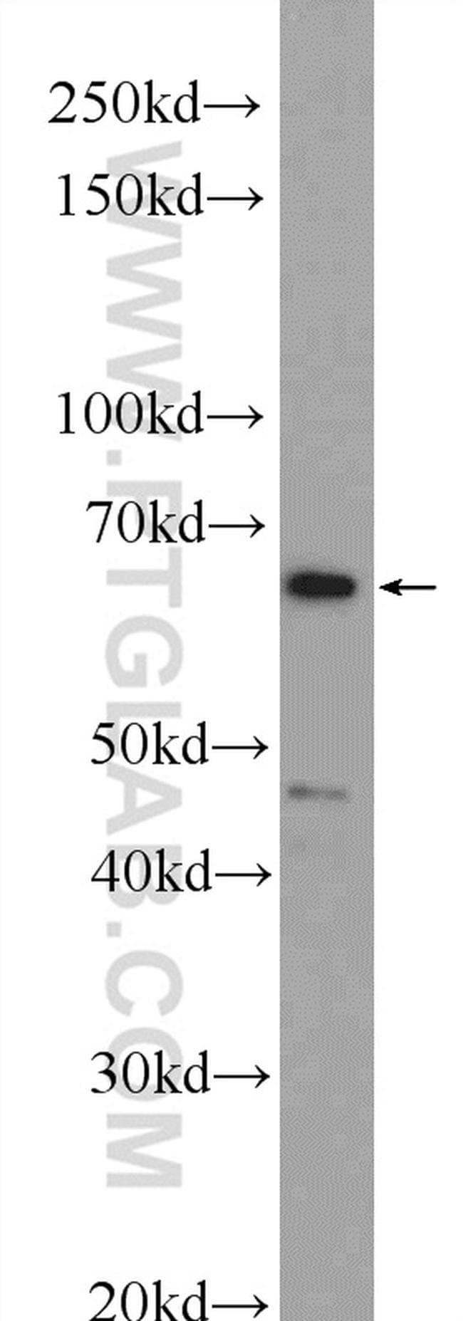 PSIP1 Rabbit anti-Human, Polyclonal, Proteintech 150 μL; Unconjugated Ver productos