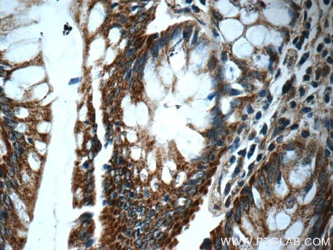 WDR92 Rabbit anti-Human, Mouse, Polyclonal, Proteintech 20 μL; Unconjugated Produkte