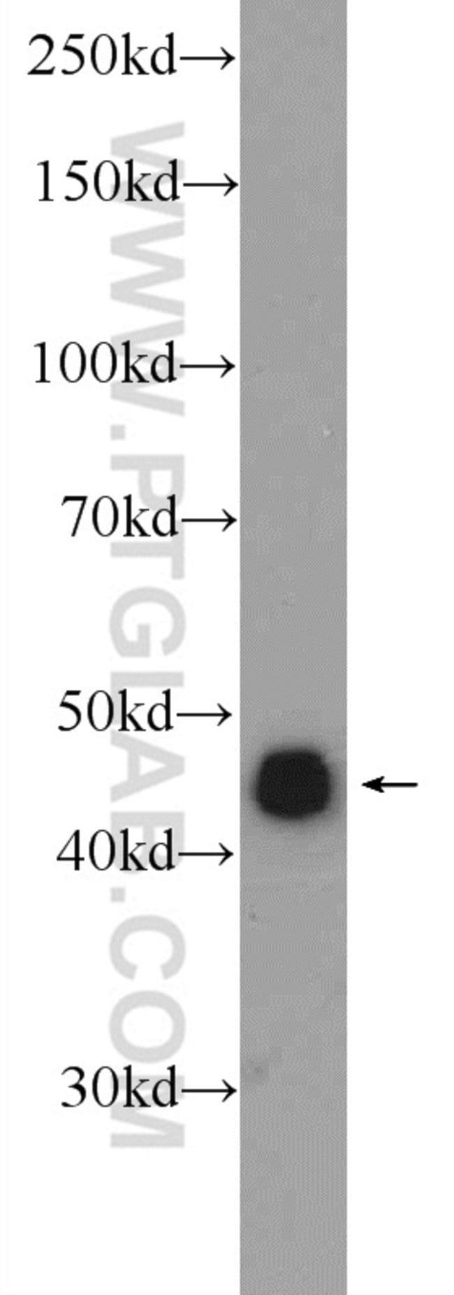 ZNF689 Rabbit anti-Human, Mouse, Polyclonal, Proteintech 20 μL; Unconjugated Produkte