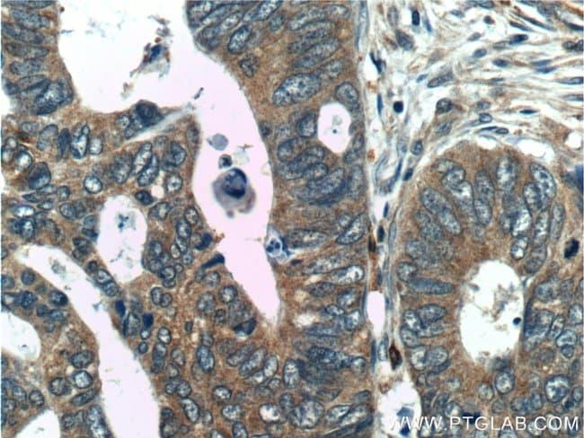 C2orf79/PTRHD1 Rabbit anti-Human, Polyclonal, Proteintech 150 μL; Unconjugated Ver productos
