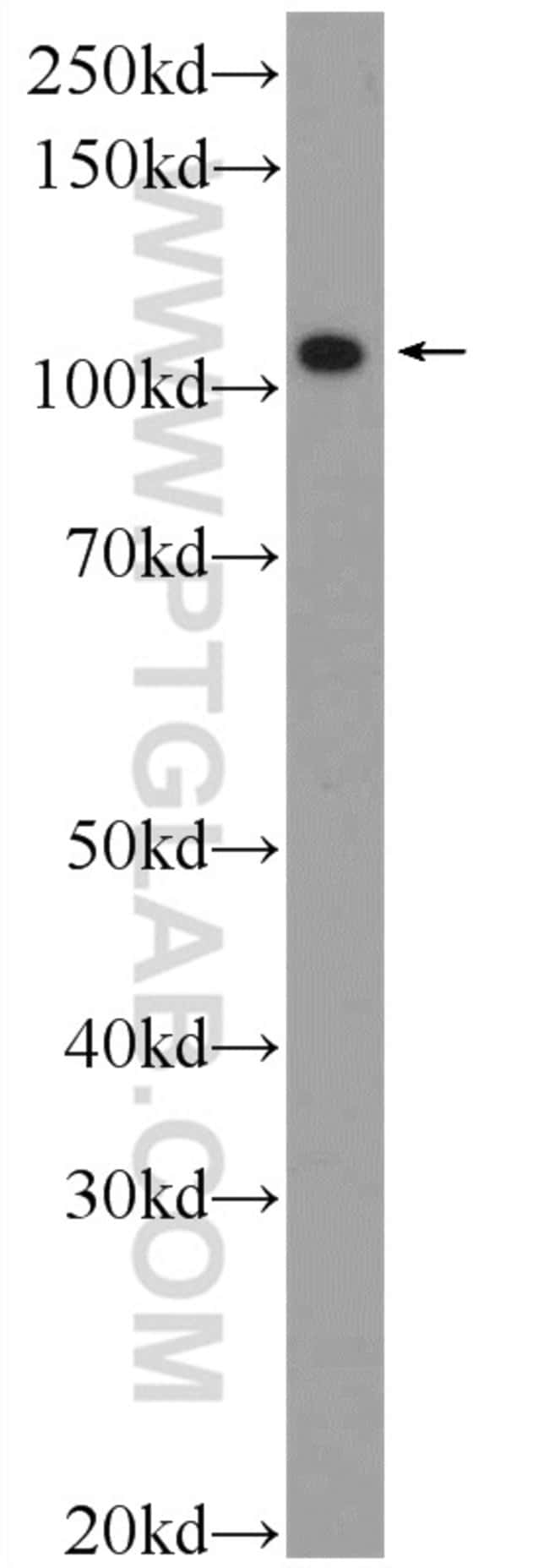 FSD2 Rabbit anti-Human, Mouse, Rat, Polyclonal, Proteintech 20 μL; Unconjugated Produkte