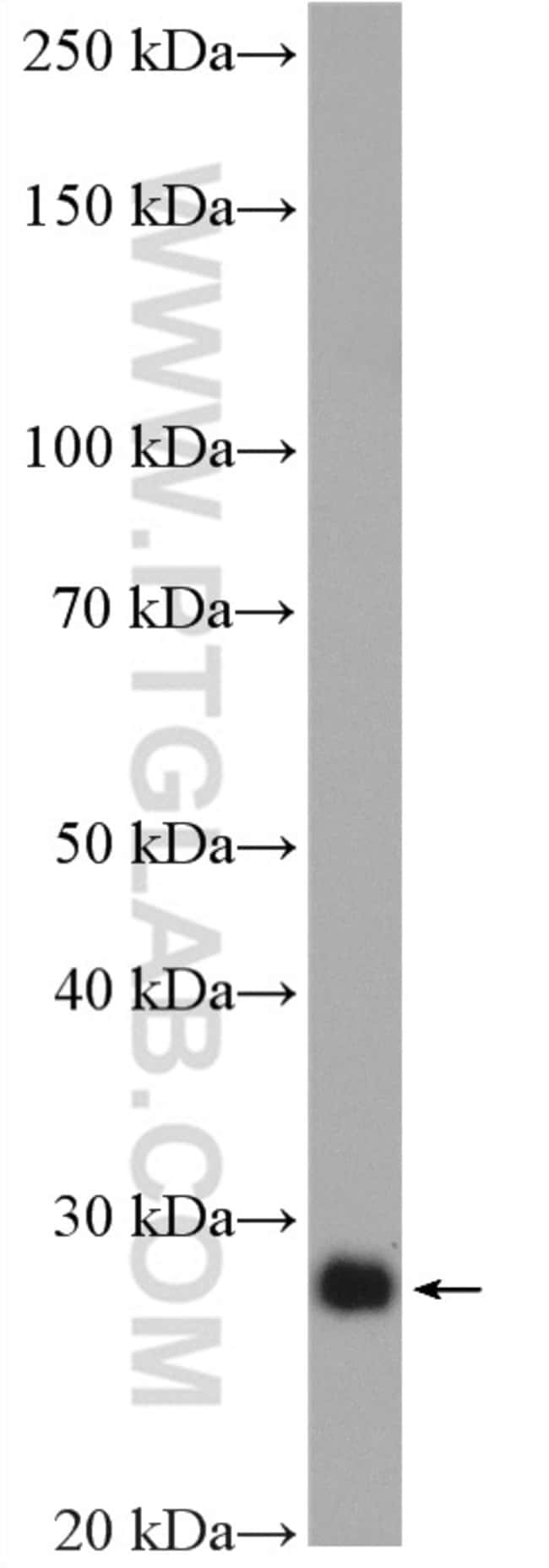 P27/KIP1 Rabbit anti-Human, Mouse, Polyclonal, Proteintech 150 μL; Unconjugated Ver productos