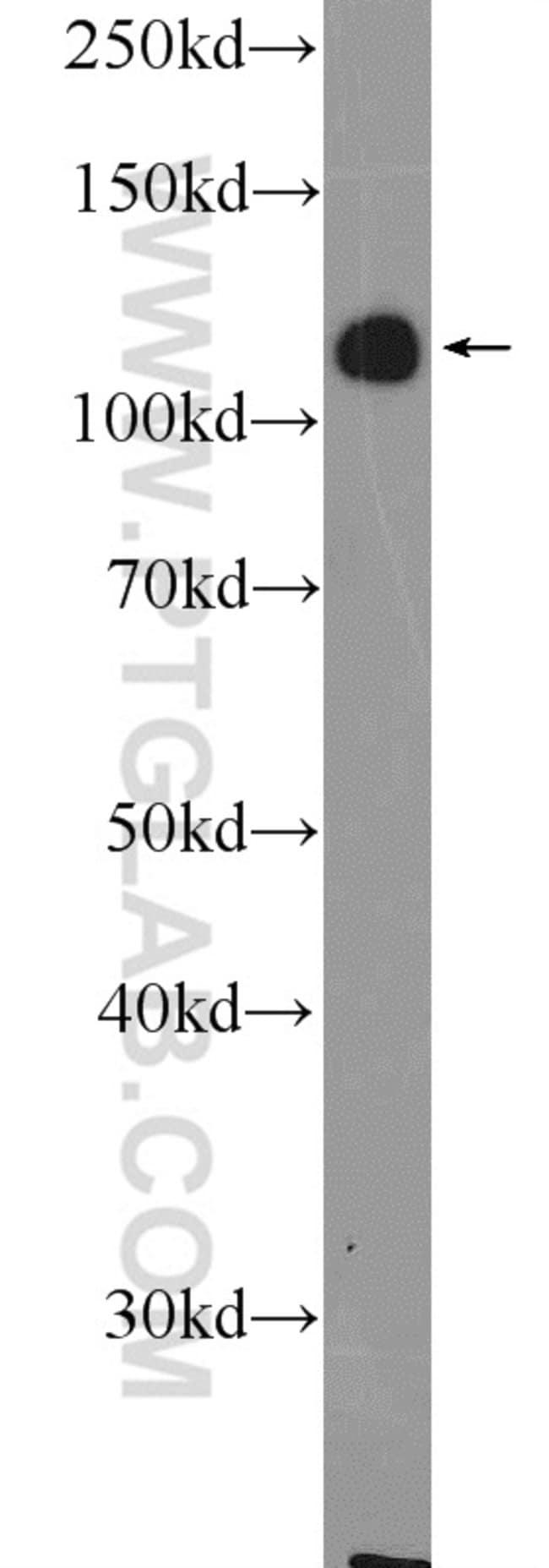 ZC3H7B Rabbit anti-Human, Mouse, Polyclonal, Proteintech 150 μL; Unconjugated Ver productos