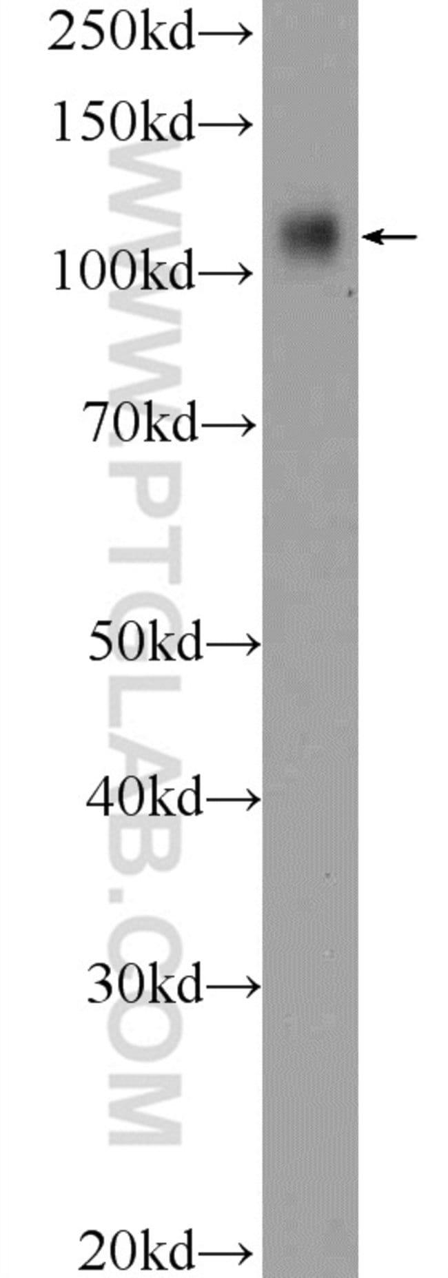 RB1 Rabbit anti-Human, Polyclonal, Proteintech 20 μL; Unconjugated Produkte